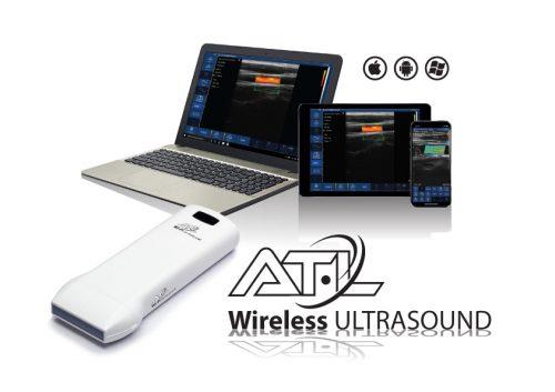 Sonde-ecografiche-Wireless--Color-Doppler---Wireless-Ulrasound-Probes---ATL-Milano-Windows-Android-iOS-Ecografi-Wireless