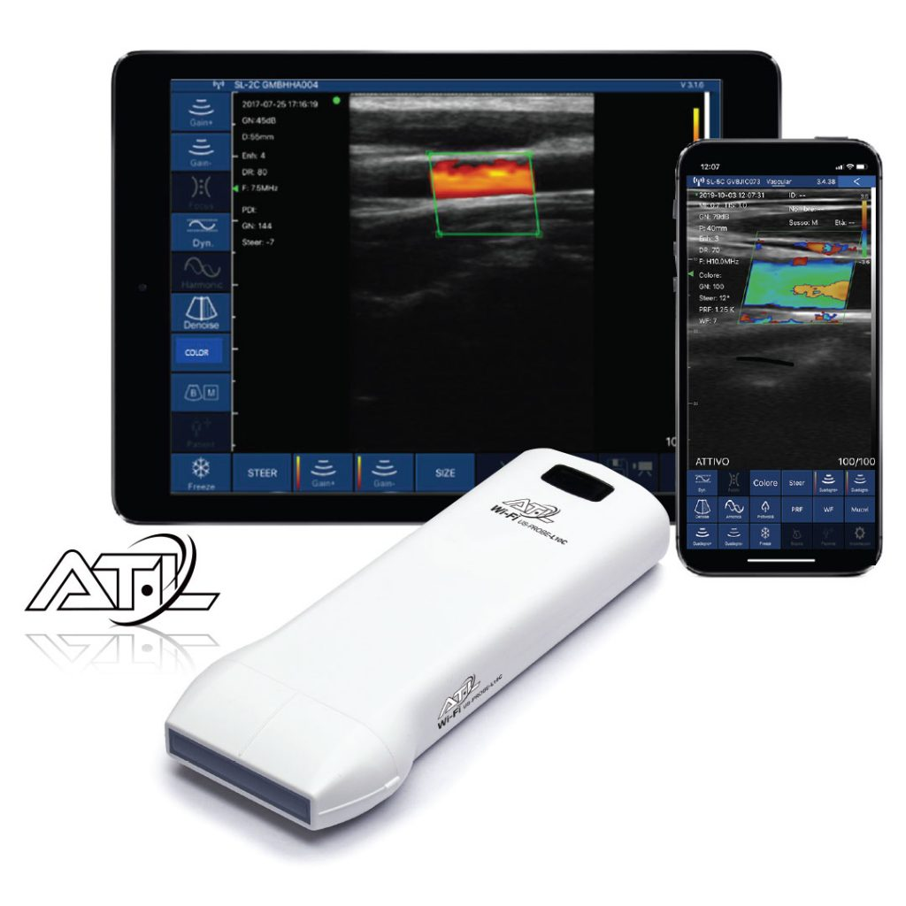 Wireless Ultrasound Color Doppler